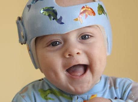 Pediatric Neurosurgery Phoenix